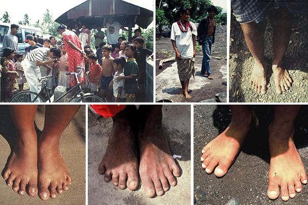 裸足で生活する国の人々の足