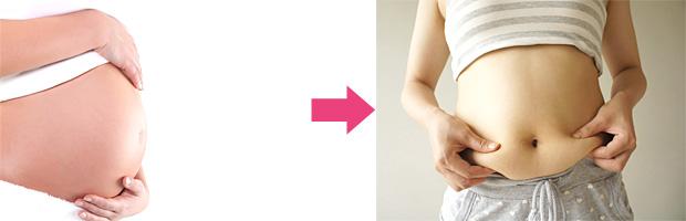 産後の腹部のたるみ