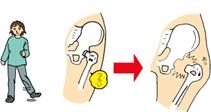 股関節が開いてしまうメカニズム