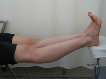 反張ひざの症状