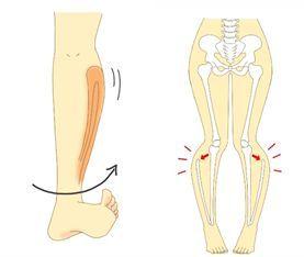ひざ関節のゆがみ
