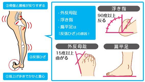浮き指と反張膝と骨格の関係