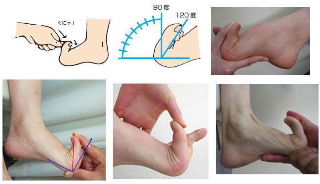 浮き指(指上げ足)の特徴とチェック法